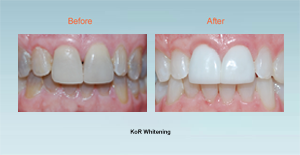 KOR teeth whitening Bel Air MD