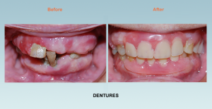 dentures bel air maryland