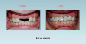 Dental Implant Dentist Bel Air