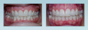 Invisalign dentist in Bel Air MD