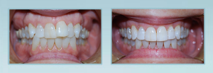 Invisalign Dentist bel air maryland