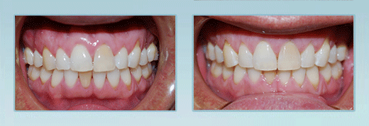 Invisalign Patient Before and After Photos