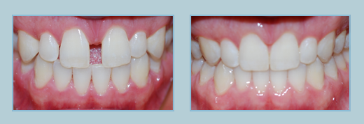 Invisalign Before and After - Bel Air MD