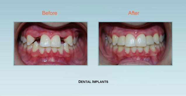 Dental Implant Dentist Bel Air Implants