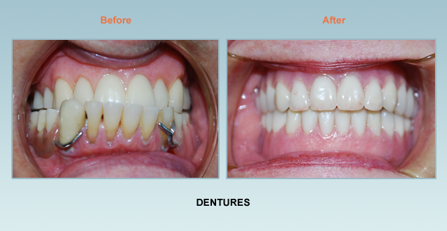 Dentures Bel Air Dentist