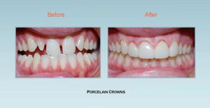 Cosmetic Dentistry Bel Air Maryland