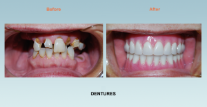 cosmetic dentistry dentures bel air maryland