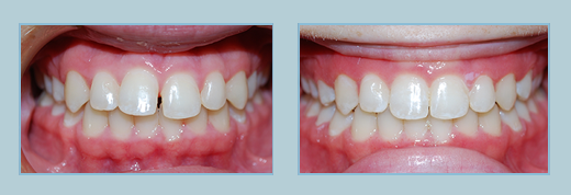 invisalign treatment bel air md