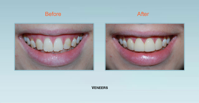 Porcelain Veneers Maryland