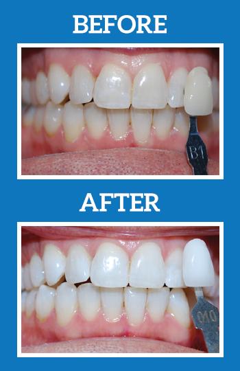 KOR Teeth Whitening Dentist Bel Air